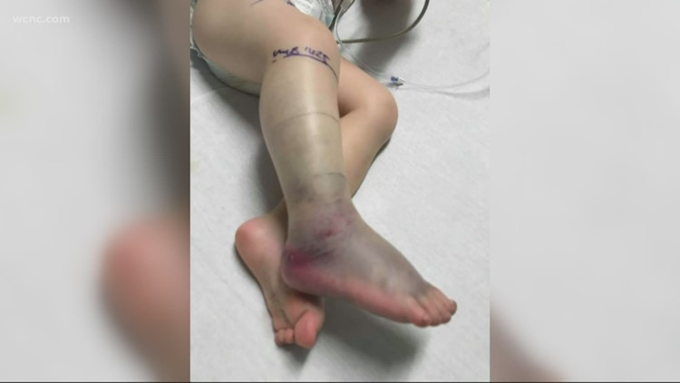 South Carolina boy bitten by snake while playing in yard