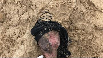 Sunburned, injured dog rescued after being buried alive in Hawaii