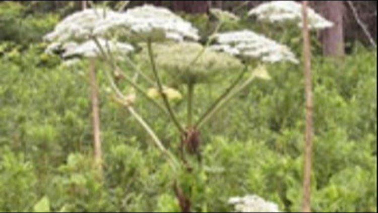 Toxic plant that burns skin, causes blindness spreading in U.S.
