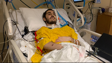 Alexandria man hit by car loses leg, family asks for help