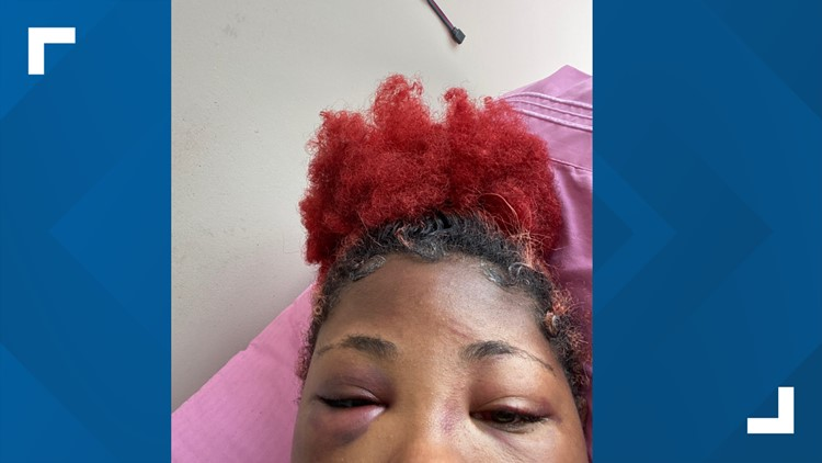 """Montgomery Blair High School student: """"I was attacked for no reason"""""""