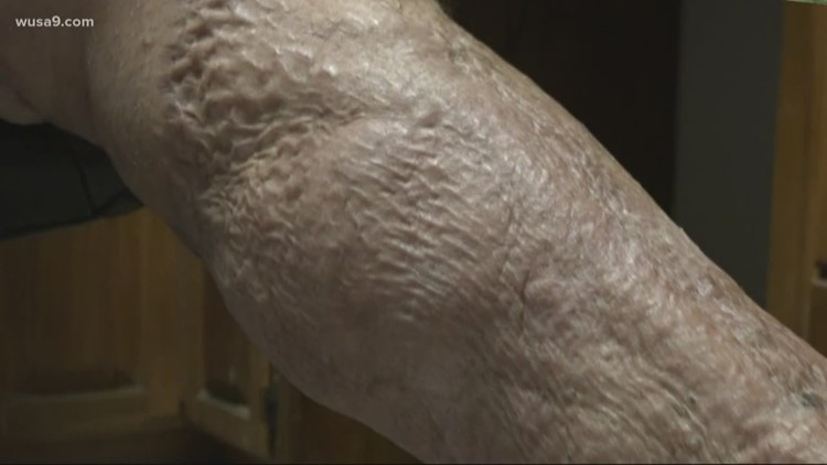 Flesh-eating bacteria Vibrio is more common than most think | wusa9.com