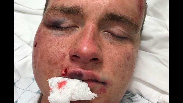 Gay couple attacked on U Street